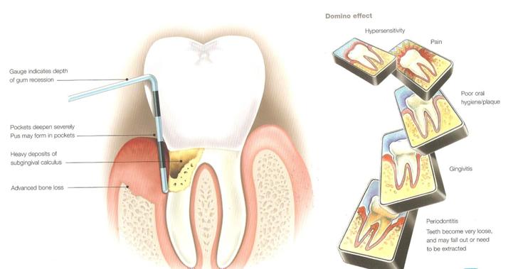 6-Home-Remedies-to-Treat-Gum-Disease-1