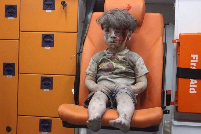 heartbreaking-photo-5-year-old-boy-shows-children-suffering-syrias-civil-war-1