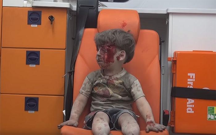 heartbreaking-photo-5-year-old-boy-shows-children-suffering-syrias-civil-war-4