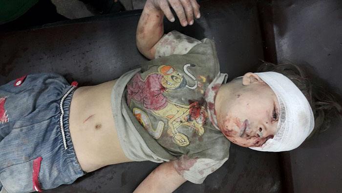 heartbreaking-photo-5-year-old-boy-shows-children-suffering-syrias-civil-war-5