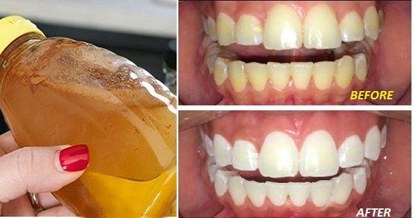 try-gargling-apple-cider-vinegar-teeth-whitening-1