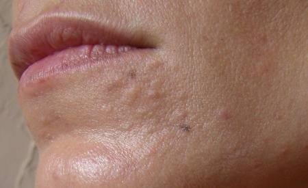 Juice facial cysts